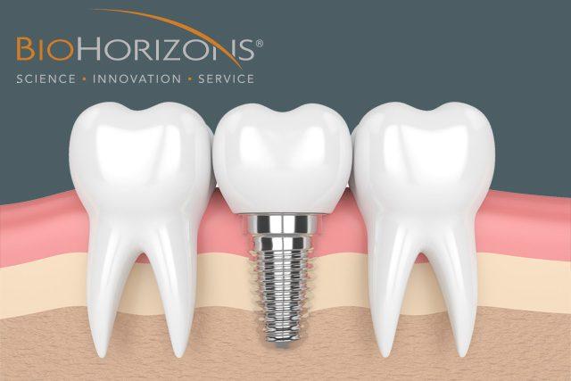http://firstdental.es/wp-content/uploads/2018/07/banner-pequenos-principal-implantes-640x427.jpg