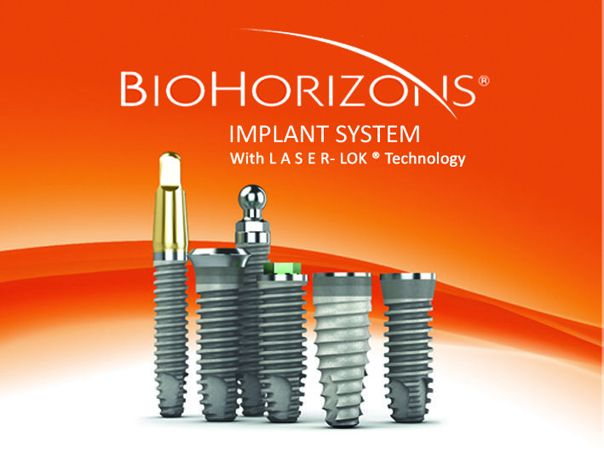 http://firstdental.es/wp-content/uploads/2018/09/Biohorizons-Dental-Implant.jpg