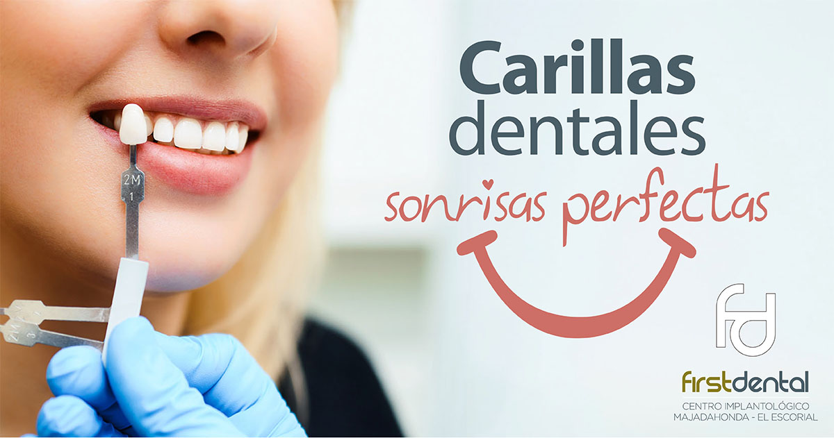 https://firstdental.es/wp-content/uploads/2018/09/banner-Firstdental-carillas.jpg