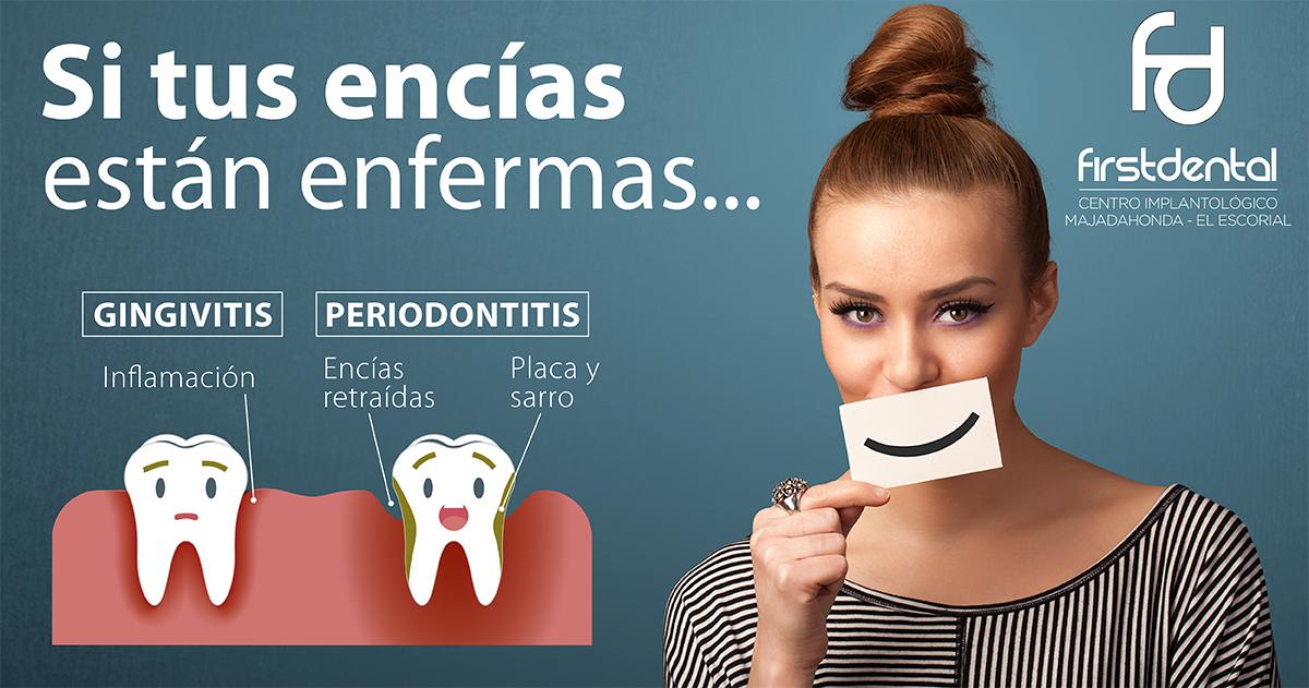 https://firstdental.es/wp-content/uploads/2018/09/banner-Firstdental-encias-enfermas.jpg