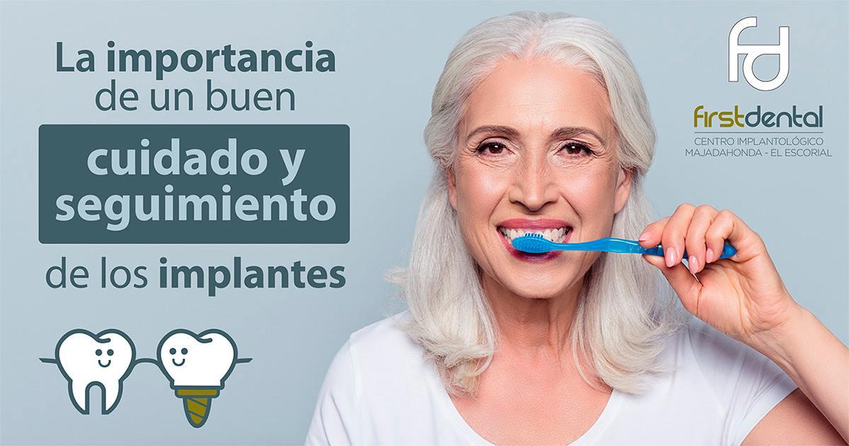 https://firstdental.es/wp-content/uploads/2018/09/banner-Firstdental-implantologia-1.jpg