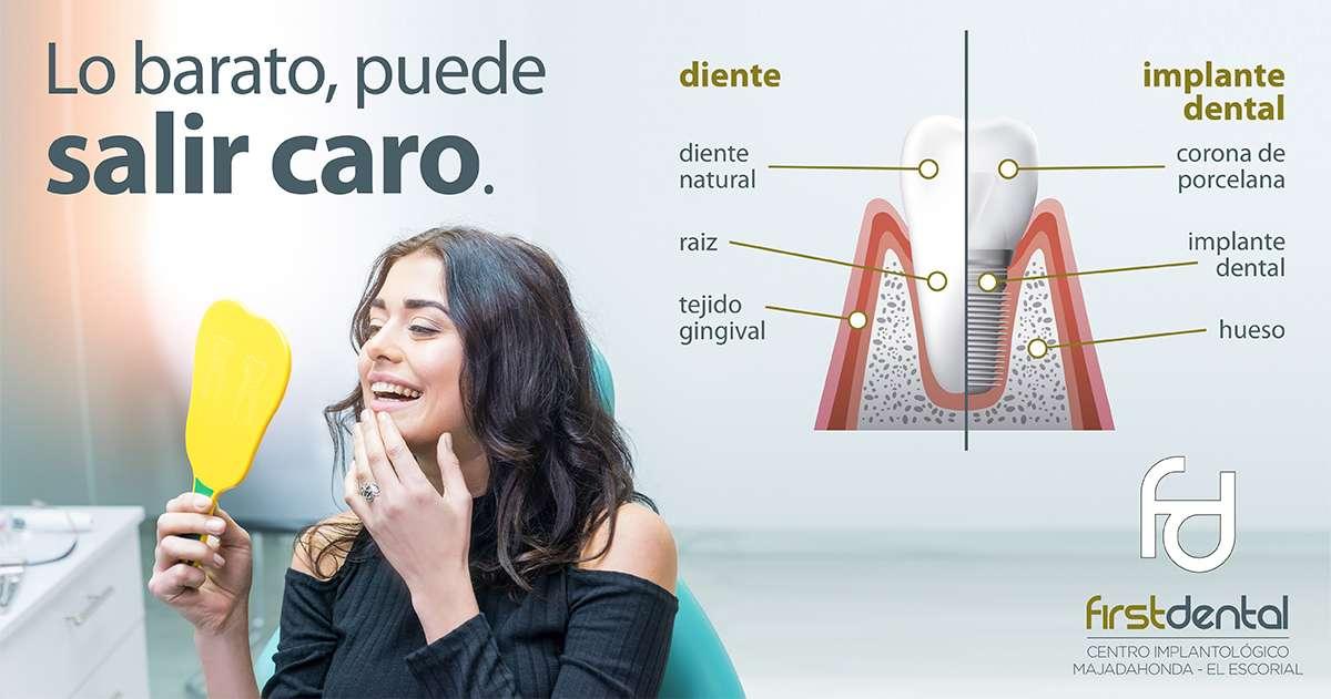 https://firstdental.es/wp-content/uploads/2018/09/banner-Firstdental-lobarato-te-puede-salir-caro.jpg