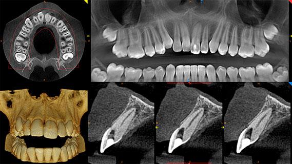 carestream cs 8100 3d periodontisis