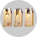 https://firstdental.es/wp-content/uploads/2018/09/endodoncias.png