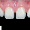 http://firstdental.es/wp-content/uploads/2018/09/estetica_dental01.png