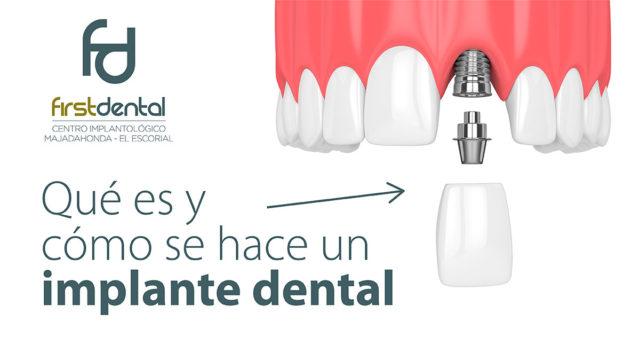 ¿Qué es y cómo se hace un implante dental?