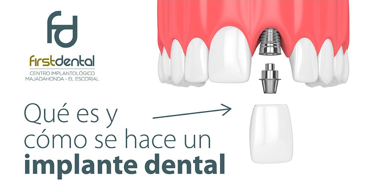 https://firstdental.es/wp-content/uploads/2019/02/banner-Firstdental-que-es-y-como-se-hace-implante-2.jpg