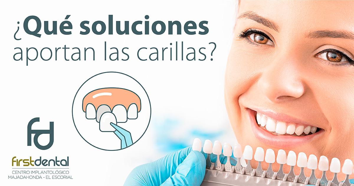https://firstdental.es/wp-content/uploads/2019/02/banner-Firstdental-que-soluciones-aportan-las-carillas.jpg