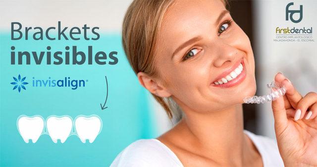 ¿Sabías que existe la ortodoncia invisible, que sustituye a los brackets convencionales?