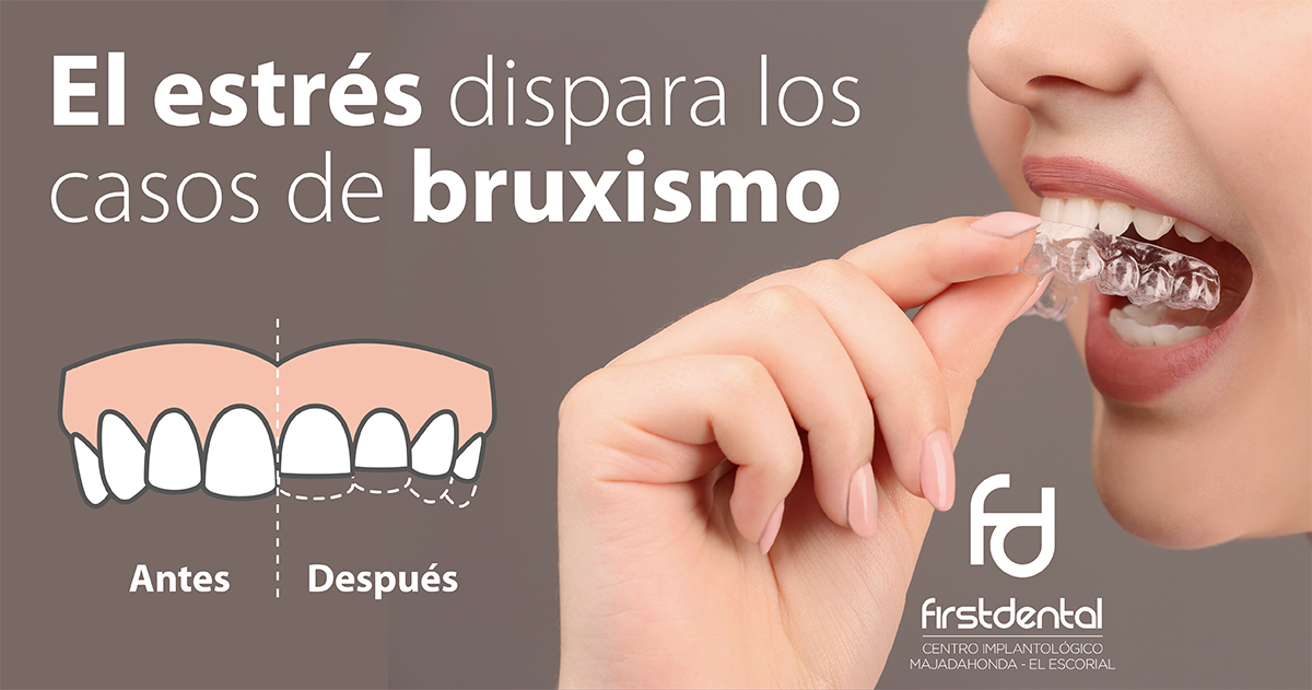 https://firstdental.es/wp-content/uploads/2019/05/banner-Firstdental-estres-casos-bruxismo.jpg