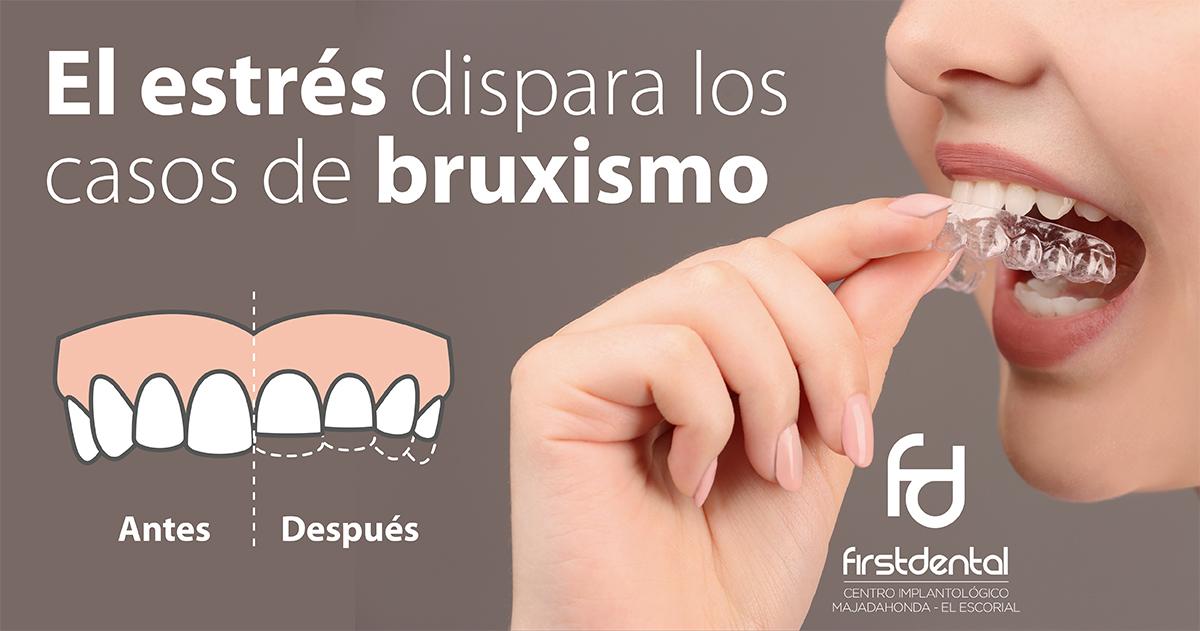 https://firstdental.es/wp-content/uploads/2019/05/banner-Firstdental-estres-casos-bruxismo.jpg