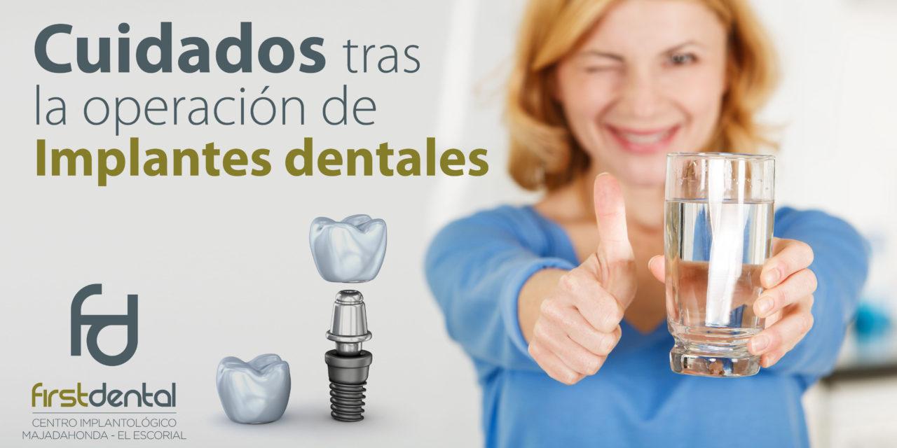 https://firstdental.es/wp-content/uploads/2019/06/banner-Firstdental-cuidados-implantes-1280x640.jpg