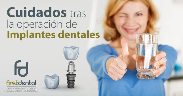 Cuidados tras la operación de Implantes dentales