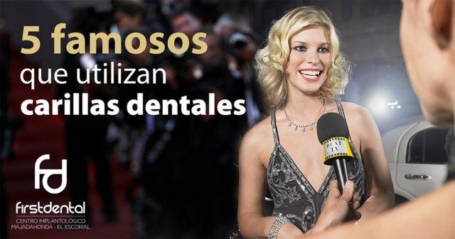 5 famosos que utilizan carillas dentales