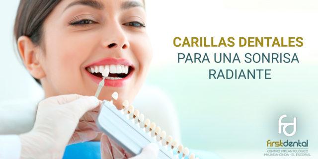 Carillas dentales para una sonrisa radiante